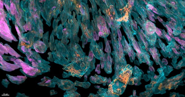 New Microscope Technology Reveals Cells In Unprecedented Detail
