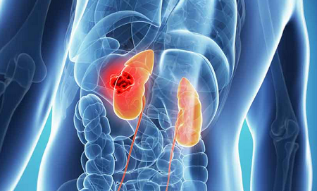 Press Release on Renal Disease Research: August-2018